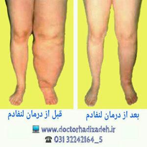 درمان ورم دست و پا