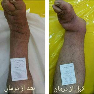بهترین متخصص درمان ورم دست و پا در اصفهان