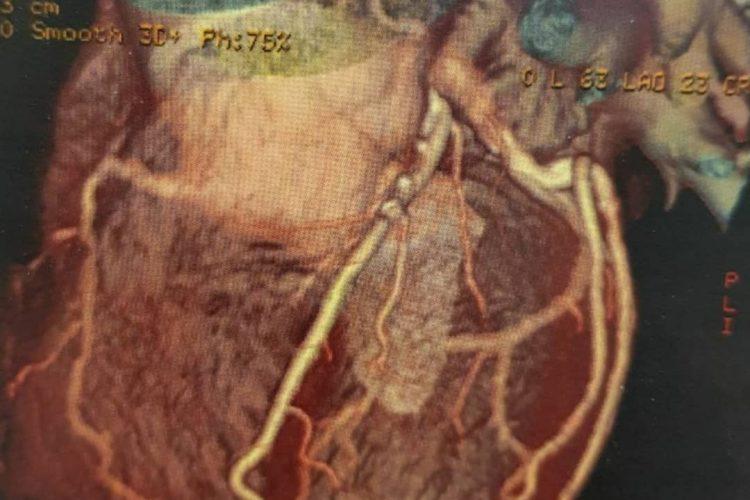 پیشگیری از بیماری های قلبی عروقی