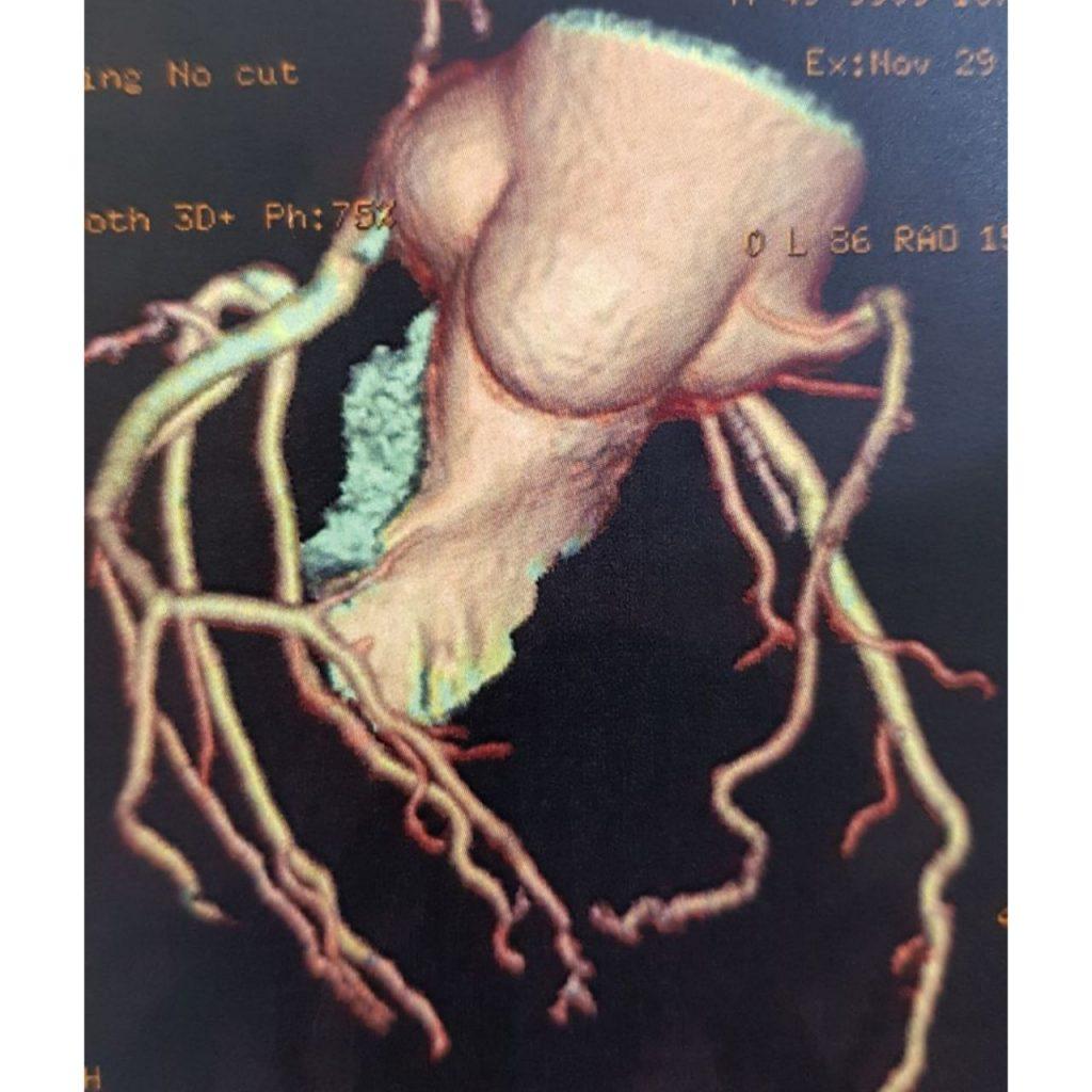 چگونه از بیماری های قلبی عروقی پیشگیری کنیم